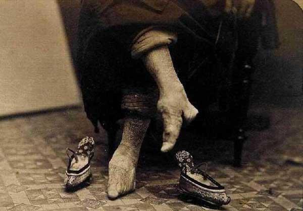 pies vendados