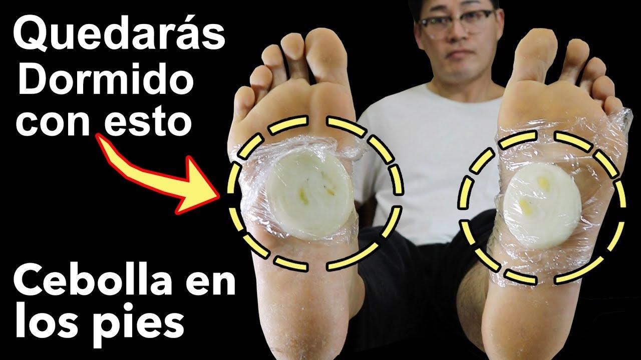 Cebolla en los pies, mira este beneficio para tu salud